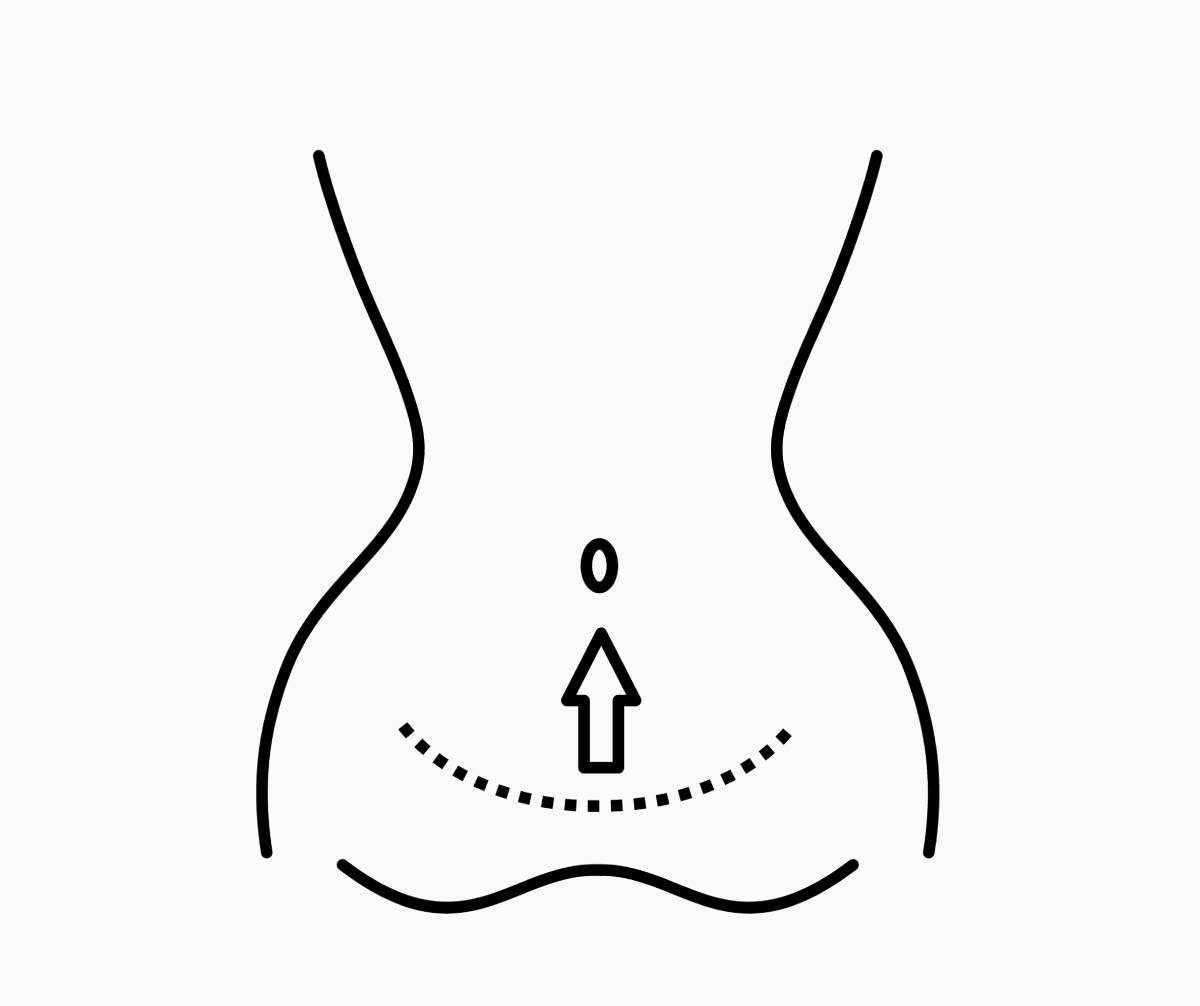 keyseriyye_plus_mini_abdominoplastika.jpg